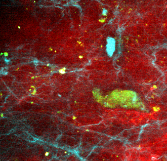 invivo rat brain